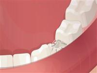 Diş İmpalantı Ameliyatı